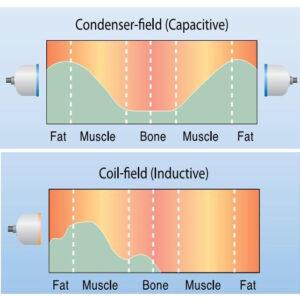Sóng ngắn, vi sóng trị liệu & kích thích liền xương